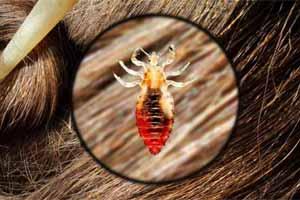 Cómo matar piojos de manera natural y efectiva