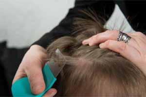 Cómo quitar los piojos de la cabeza definitivamente